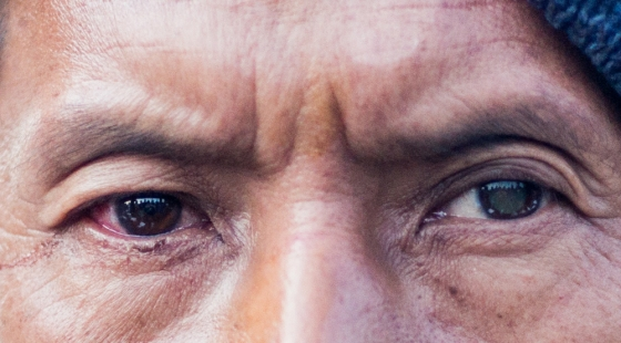 He had dense cataracts in both eyes and was offered surgery to both; he however insisted on only having one eye done...here the left eye can be seen to still have a whitish cataract whilst the right pupil is clear