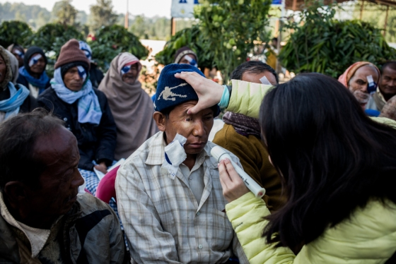 opening the eye patches, some of the patients were able to see well for the first time in years..